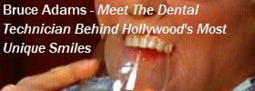 Dental Implants And Prosthetic Dental Effects In Movies